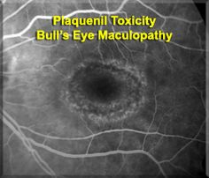 PLAQUENIL is useful in patients who had systemic lupus erythematosus and acute or chronic rheumatoid artheritis.     After prolonged use, usually at least 5 years, pateints may rarely develop retinal toxicity from plaquenil.  The patient pictured on the right had been taking plaquenil for 15 years before developing the bull's eye macular lesions.