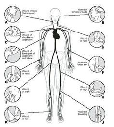 Pressure points on the body  Bleeding - First Aid