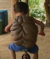 This boy wants to be just like any other child his age, but he was born with a rare and life-threatening condition. Six-year-old Didier has a mole on his back which keeps on growing. In his Colombian village they call him Turtle boy. Didier's case has shocked even the experts.