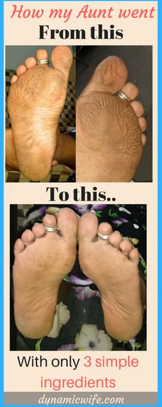 Amazing Listerine Foot Bath Soak for Dry Cracked Feet (Before/After) wow!