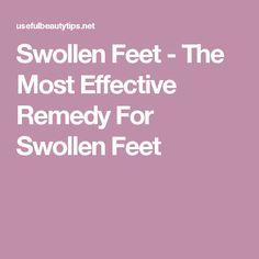 Swollen Feet - The Most Effective Remedy For Swollen Feet