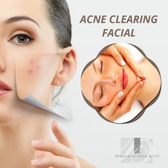 Acne clearing facial mainly consists of deep cleansing of pores and deep tissue layers. This removes the oil in the tissue and the antibacterial components help to eliminate the micro-organisms.
