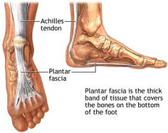 Conventional treatments for Plantar Fasciitis can be effective, however, you should know that there are treatment options that you can perform at home that do not require dangerous medications or ...