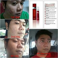 apple+grape stemcell from mibelle biochemistry..only MYR 135 per pack of sublingual powder.. do whatsapp  +60163463516 for more info.. also get 2 pack free if u bought 12 pack of stemcell