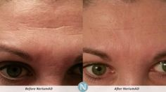 Nerium before and after Purchase yours at www.haffner.nerium.com