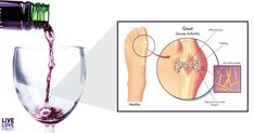 The development of gout is influenced by several uncontrollable factors like genetics and age, but there are also foods that cause gout flare ups. Foods That Trigger Gout, Foods That Cause Gout, Gout Flare Up, Gout Relief, Red Wine, Alcoholic Drinks, Genetics, Factors, House Renos