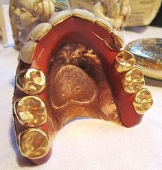 These Gold, Enameled and Pearly White Teeth