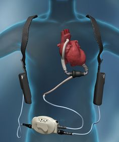 History was made when a left ventricular assist device (LVAD) was implanted in a muscular dystrophy patient. Lvad Heart, Artificial Heart, Joint Commission, Cardiac Nursing, Heart Pump, American Heart Association, Heart Failure, Muscular, Radiology