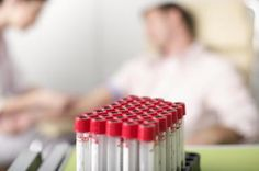 Why Do Doctors Test Your Red Blood Cell Count?: A red blood cell count can tell a physician if there is blood loss, or if there is anything wrong with the blood cells in the body.