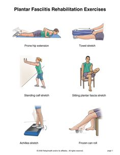 1000+ images about Health - plantar fasciitis on Pinterest ...