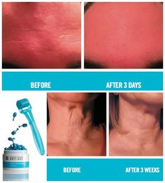 """Get Your Skin """"Mitzvah Ready!"""" Free Giveaway! Claim Your Gift - loveyourskinxo@gmail.com 