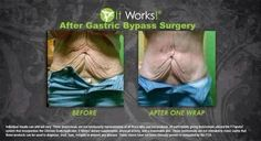 AMAZING!!! Tones, Tightens and Firms in as little as 45 minutes. Also, can reduce the appearance of cellulite!! #ItWorks #BodyWraps #GastricBypass Contact me to set up your wrap appointment 717-440-0744