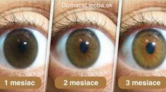 Natural Eye drops Remedy To Clear The Eyes, Reduce Cataract and Increase Your Vision In 3 Months - Here is What You Need to Do to Avoid Surgery! Natural Home Remedies, Natural Healing, Eye Sight Improvement, Eyes Problems, Natural Medicine, Health Remedies, Homeopathic Remedies, Ayurveda, Fitness Inspiration