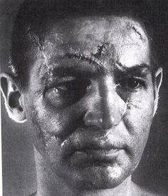 Detroit RedWings hockey goalie Terry Sawchuk....and that folks, is why goalies wear masks!