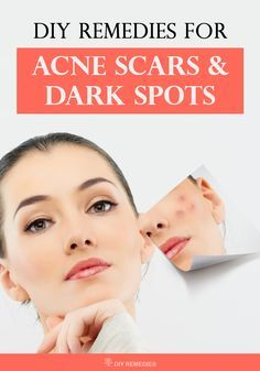diy-remedies-for-acne-scars-and-dark-spots