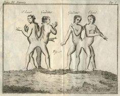http://www.ebay.de/itm/1795-Notomia-e-Fisica-Animale-2-Kupfer-Elephantiasis-Siamesische-Zwillinge-/280812688597?pt=Antiquarische_B%C3%BCcher=item4161bd94d5