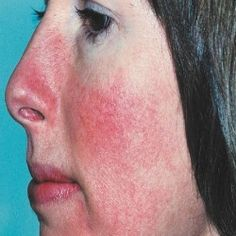 Home Remedies For Rosacea - Natural Treatments & Cure For Rosacea | Search Home Remedy