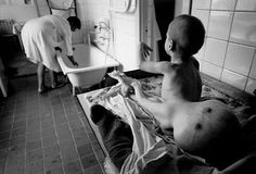Chernobyl. (this child's kidneys are in that tumor)