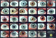 Iridology (Short Blurb A Ways Down At This Link)