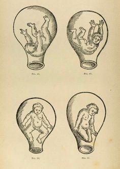 16th century illustrations of fetus in utero _Accoucheurs et...