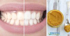 A pesar de quela cúrcuma es capaz de dejar una mancha en casi cualquier cosa; también puede ser una gran herramienta para aclarar y para blanquear los dientes amarillos de forma natural. Aunque la razón exacta de por qué funciona no se conoce, muchos confían en ella. ¡Inténtalo para creerlo…