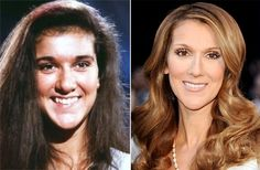 Celine Dion Before and After Plastic Surgery Always interesting what you can find when you type in cosmetic surgery and other related terms