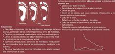 El arco plantar presenta forma abovada con la concavidad hacia abajo y es la estructura que presenta el pie con el fin de soportar mejor las fuerzas de presión y de carga. El pie cavo tiene un arco más arqueado o exagerado de un pie normal, haciendo que el pie sea relativamente inflexible. Esto, hace que aumente el reparto de peso hacia la zona del antepié, produciendo dolor y a menudo viene asociado a una tensión excesiva en el gemelo.