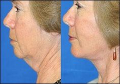 Look Younger Again: Yoga Facial Exercises For A Non-Invasive Facelift