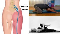 "What is sciatica? Sciatica is leg pain caused by a pinched nerve in the lower back. While the pangs begin in nerve roots located on either side of the lower spine, they afterwards course through the sciatic nerve, which runs the length of each leg from the buttock down to the foot. The resulting ""leg …"