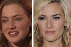 Kate Winslet Nose Job Plastic Surgery Pictures Before And After Rhinoplasty