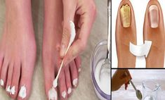 Do you take good care of your nails?Fungi on the na Toe Fungus, Nail Fungus, Psoriasis Diet, Hypothyroidism Diet, Snoring Remedies, Alternative Treatments, Natural Medicine, Fat Fast, Health Tips