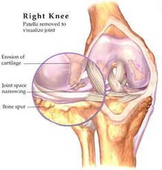Knee Osteoarthritis affects approximately of the population. It is a progressive musculoskeletal, degenerative disease that wears away the articular cartilage and underlying bone in your knee joint, triggering chemical reactions within the knee joint Bursitis Knee, Knee Osteoarthritis, Arthritis Hands, Knee Arthritis, Medial Meniscus Tear, Knee Doctor, Shoulder Arthritis, Hernia Repair, Degenerative Disease