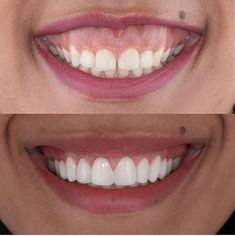 Smile Dental, Smile Teeth, Teeth Care, Dental Hygiene, Dental Care, Lente Dental, Dentist Reviews, Dental Photography, Teeth Dentist