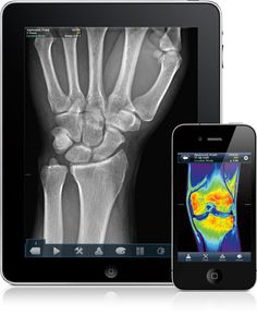 Travel medical apps to aid chronic patients when travelling.