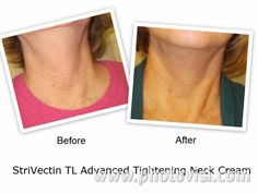 StriVectin TL Advanced Tightening Neck Cream Giveaway! Prime Beauty Blog