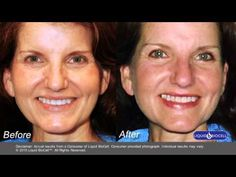 Before and After Photos, Liquid BioCell, United States - YouTube