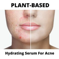 PLANT-BASED SERUM FOR ACNE DRY SKIN Lighten Dark Spots, I'm Fabulous, Blue Tansy, Hydrating Serum, Skin Routine, How To Treat Acne, Acne Skin, Anti Aging Skin Care, Organic Skin Care