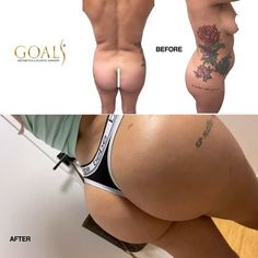 Goals Plastic Surgery - Aesthetic Medicine and Plastic Surgery Clinic Fat Transfer, Body Proportions, Amazing Transformations, Tummy Tucks, Body Contouring, Plastic Surgery, Cellulite, Selfies, Clinic