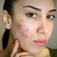 Severe Acne Scars Treatment just a reminder that a...