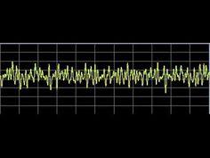 Brain Diseases - Rife Frequencies - YouTube
