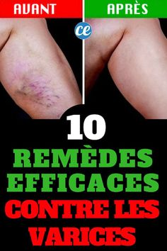 10+Remèdes+Miracle+Pour+Faire+Disparaître+les+Varices+Naturellement.