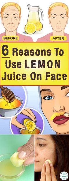 6 Reasons To Use Lemon Juice On Face #face #lemon #skincare #skin #beauty