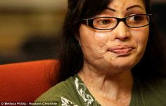 They wanted to hang me... they thought it would be an insult to Islam if I lived': New beginning in Texas for Pakistani Christian woman who suffered savage acid attack by Muslim man who thought she was a traitor  A 26-year-old woman horrifically burned in an acid attack has spoken out about her trauma as she re-builds her life in Houston.Julie Aftab was 16 and working in an office in Pakistan when a man walked in and asked her if she was Christian, spotting a small cross she wore ....please…