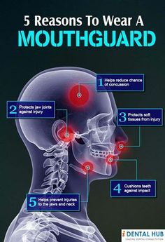Facts about Mouthguards - Lambert Pediatric Dentistry | #NewYorkCity | #NY | www.tribecapediatricdental.com