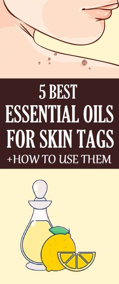 essential oils for skin tags removal What Are Skin Tags?Skin tags are a common skin condition that manifests through tiny growths on the skin. They're attached to it by small stalks. Essential Oils For Skin, Essential Oil Uses, What Are Skin Tags, Remove Skin Tags Naturally, Easential Oils, Cold Medicine, Skin Tag Removal, Natural Remedies For Anxiety, Natural Cures