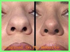 Rhinoplasty Before And After Rhinoplasty Before And After, Wide Nose, Bamboo Wind Chimes, Lucky Bamboo, 8 Year Olds, Faber Castell, Business For Kids, Feel Good, Lose Weight
