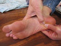 Natural Remedies to Heal Heel Spur Pain - I Love Natural Healing
