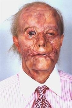 Gary Oldman as Mason Verger from Hannibal. Crazy good makeup, I didn't even know it was him at first.