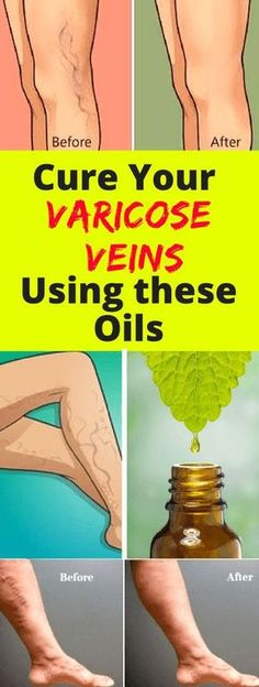 Varicose veins and their milder cousin's spider veins are enlarged, bulging, blue or purple veins usually in your legs and feet. When they are at their worst, they are painful, otherwise, they are …