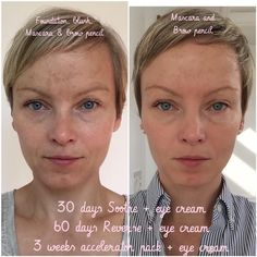 Here's what Ulla Friis Consultant from Vancouver, Canada had to say!: Here's a before and after you haven't seen yet: ME! The pregnancy with my lovely daughter and summers at the lake (not using enough sunscreen) had left me with melasma; dark spots on my skin. Enter: REVERSE The after photo is after almost four months of using Rodan + Fields's Reverse regimen, eye cream and accelerator pack. Feel free to use